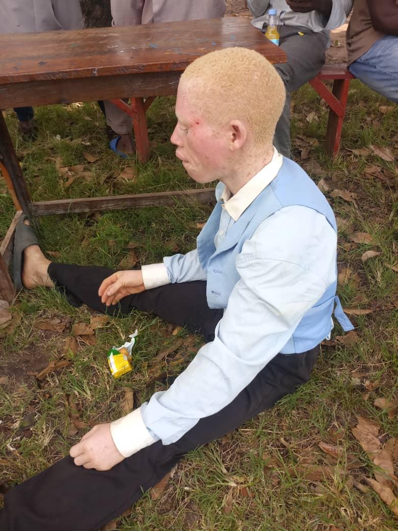 Pojke som lider av albinism sitter på marken